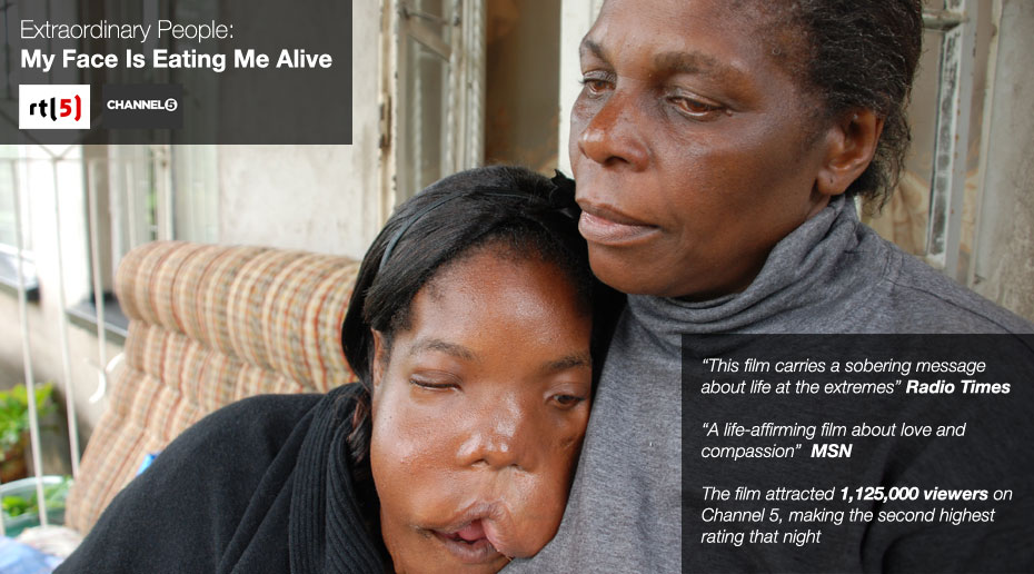 Extraordinary People: My Face Is Eating Me Alive